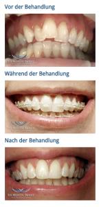 sixmonthsmile-behandlungsverlauf-freddizelener-zahanrzt-berlin